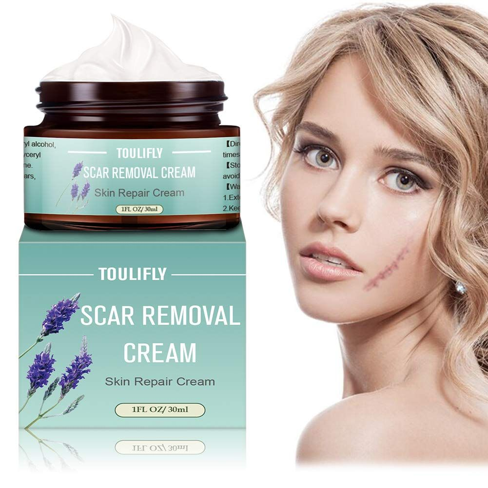 Best Scar Cream Buyers Guide 2020 Reviewthis